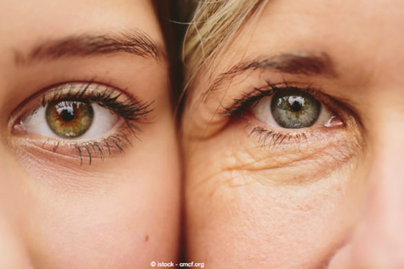 SKIN AGING: what happens in every age