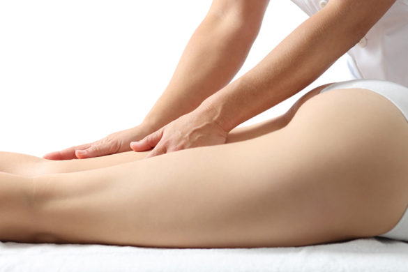 How to avoid cellulite?